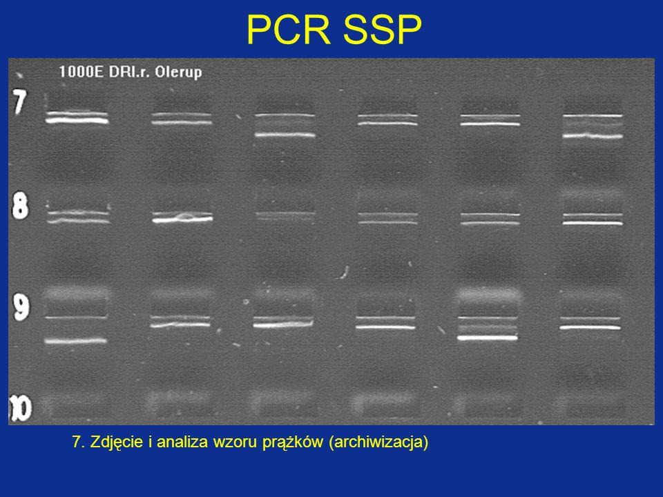 7. Analiza wzoru prążków PCR SSP