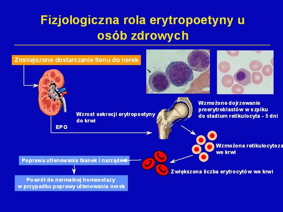 NIEDOKRWISTOŚĆ MIKROCYTOWA MCV< 80fl Żelazo, TIBC Retikulocyty Proponowany algorytm badań w diagnozowaniu niedokrwistości Badania wstępne Wywiad i badanie przedmiotowe Hemoglobina Liczba erytrocytów Liczba leukocytów i płytek krwi MCV, MCH, MCHC, RDW Poszerzona diagnostyka w zależności od wielkości krwinki czerwonej Retikulocyty TALASEMIA Żelazo, TIBC Ferrytyna Ferrytyna lub N NIEDOBÓR ŻELAZA PRZEWLEKŁE CHOROBY ZAPALNE/MDS Podwyższone stężenie receptora transferyny Obniżone < 15% wysycenie transferyny Obniżone ale >15% wysycenie transferyny Prawidłowe wysycenie transferyny Prawidłowe wysycenie transferyny NIEDOKRWISTOŚĆ SYDEROBLASTYCZNA