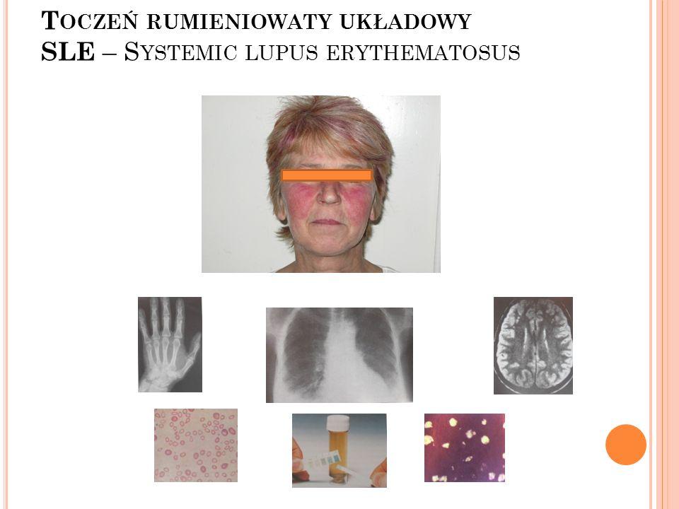 UV 7-dehydrocholesterol Cholekalcyferol; Witamina D Cholekalcyferol; Witamina D UVB Fotoprotekcja