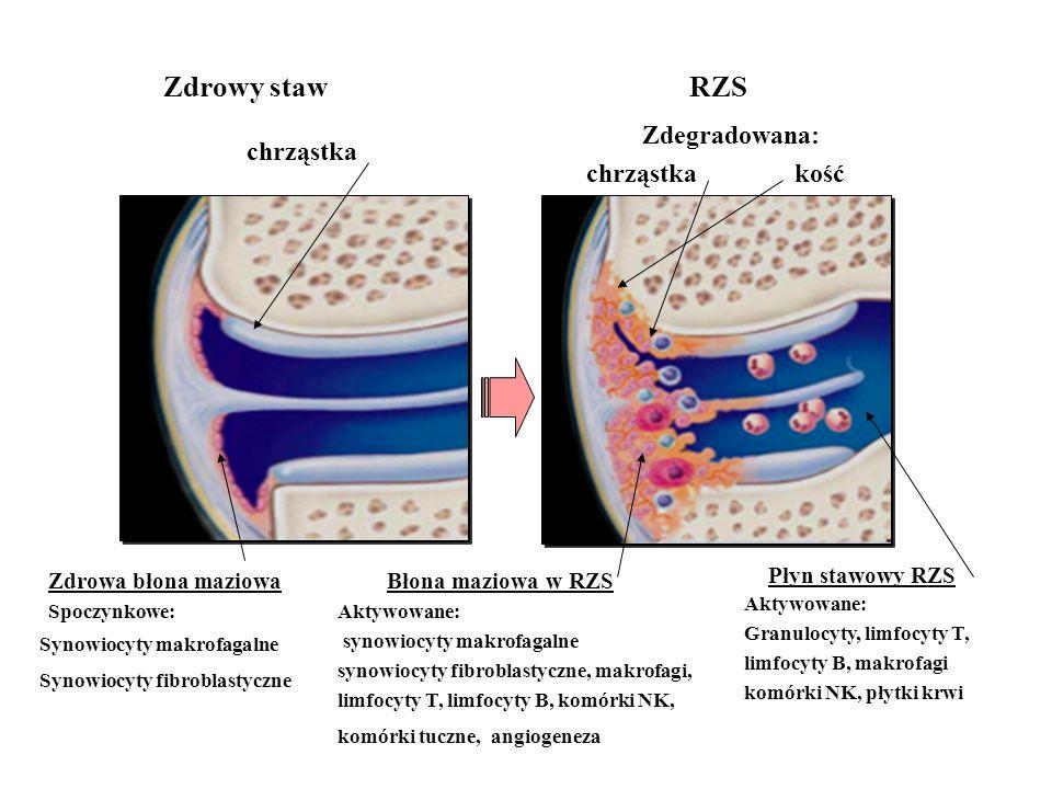 Błona maziowa w RZS Płyn stawowy RZS chrząstka Zdrowy staw RZS Synowiocyty makrofagalne Synowiocyty fibroblastyczne Aktywowane: synowiocyty makrofagal