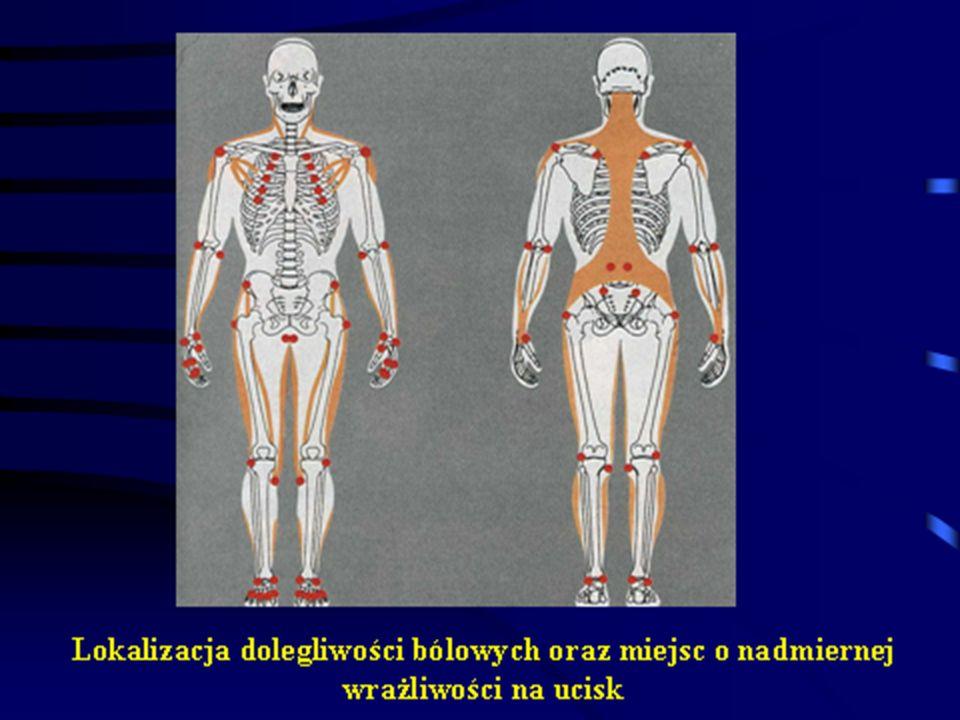 Pojawiające się wciąż dowody potwierdzają genetyczną predyspozycję do zachorowania na fibromialgię.