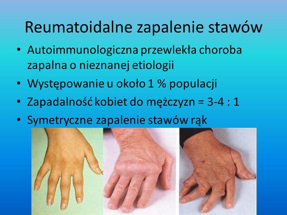 Reumatoidalne zapalenie stawów Autoimmunologiczna przewlekła choroba zapalna o nieznanej etiologii Występowanie u około 1 % populacji Zapadalność kobi