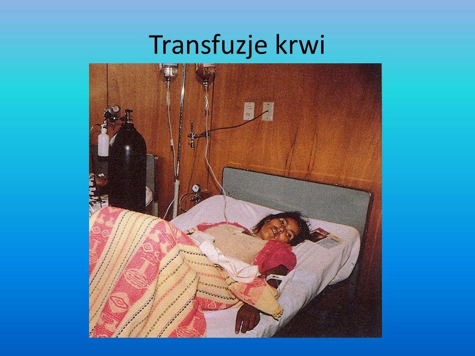 Transfuzje krwi