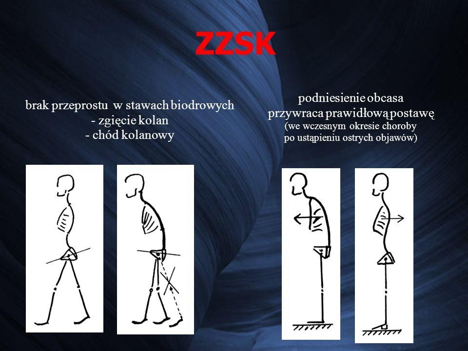 ZZSK brak przeprostu w stawach biodrowych - zgięcie kolan - chód kolanowy podniesienie obcasa przywraca prawidłową postawę (we wczesnym okresie choroby po ustąpieniu ostrych objawów)