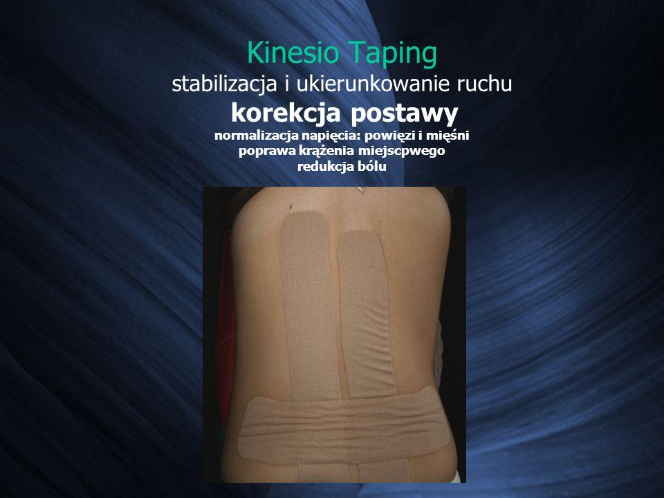 Kinesio Taping stabilizacja i ukierunkowanie ruchu korekcja postawy normalizacja napięcia: powięzi i mięśni poprawa krążenia miejscpwego redukcja bólu