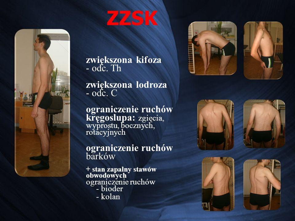 ZZSK układ mięśniowy rozluźnione mm.