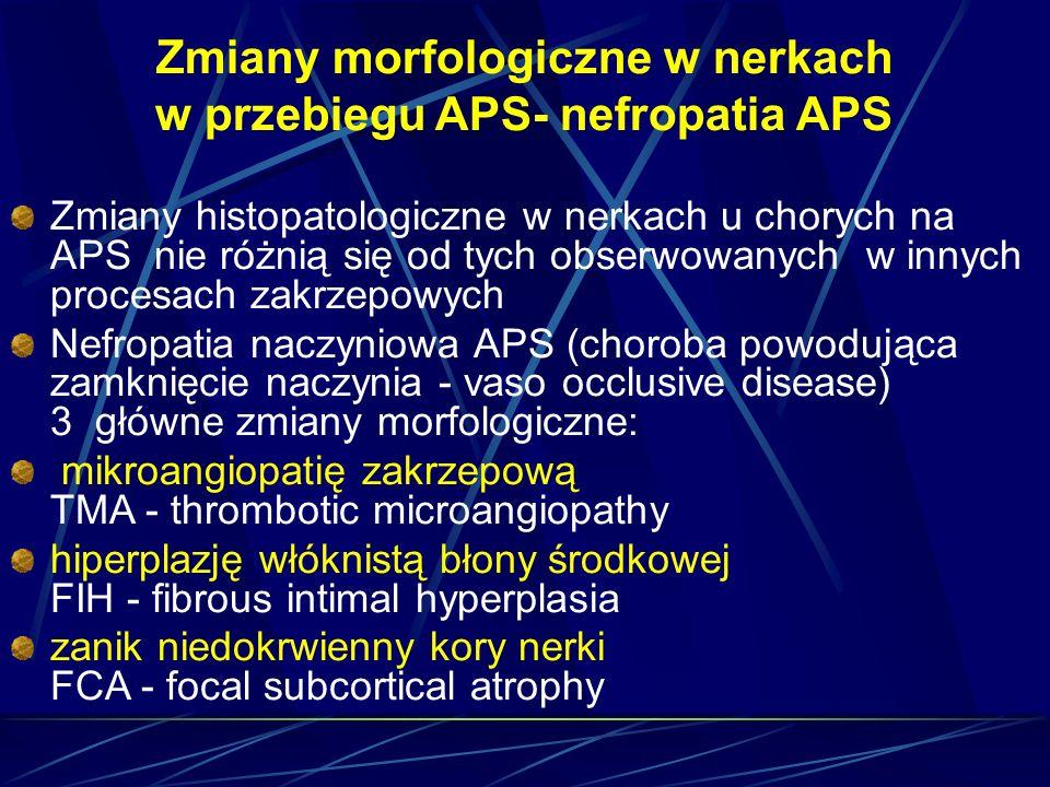 Zmiany morfologiczne w nerkach w przebiegu APS- nefropatia APS Zmiany histopatologiczne w nerkach u chorych na APS nie różnią się od tych obserwowanyc