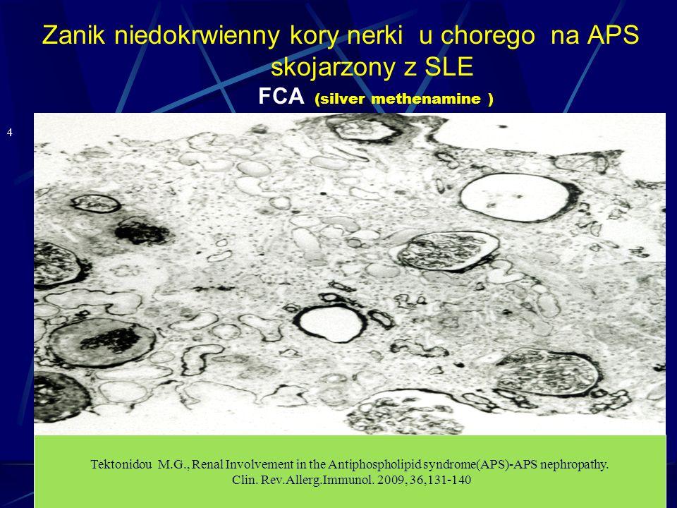 Zanik niedokrwienny kory nerki u chorego na APS skojarzony z SLE FCA (silver methenamine ) 4 Tektonidou M.G., Renal Involvement in the Antiphospholipi