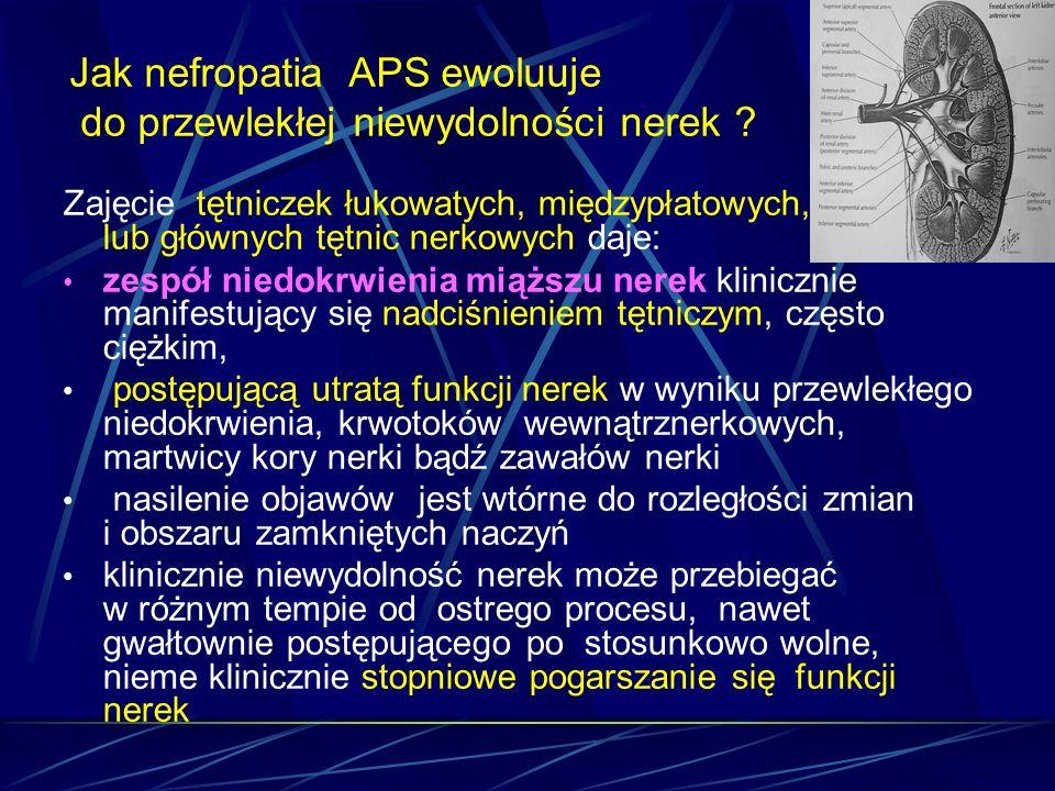 Jak nefropatia APS ewoluuje do przewlekłej niewydolności nerek ? Zajęcie tętniczek łukowatych, międzypłatowych, lub głównych tętnic nerkowych daje: ze
