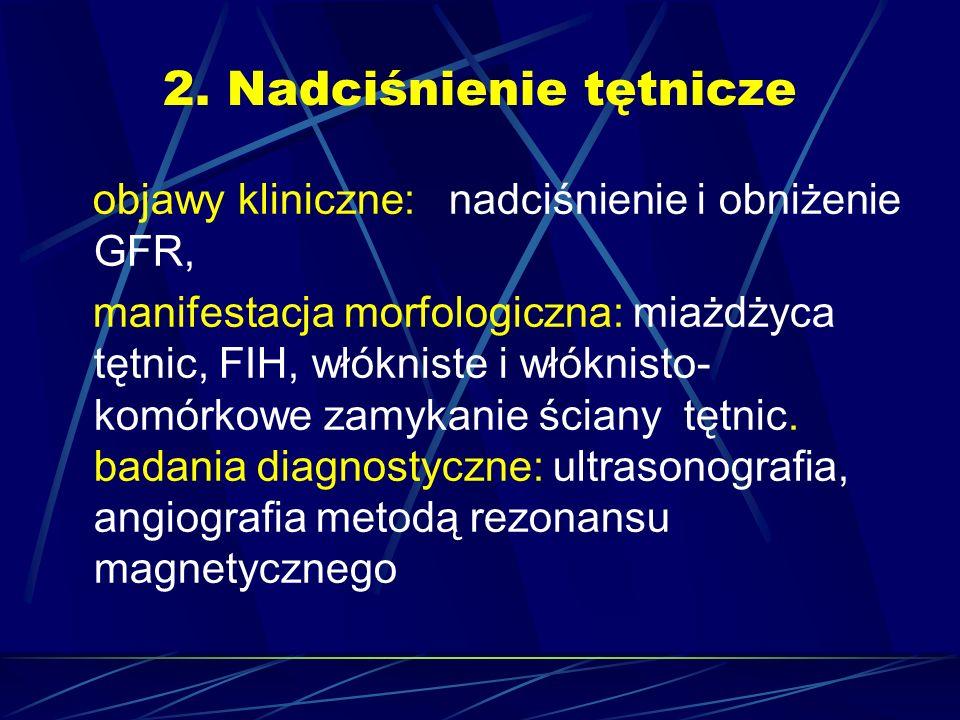 2. Nadciśnienie tętnicze objawy kliniczne: nadciśnienie i obniżenie GFR, manifestacja morfologiczna: miażdżyca tętnic, FIH, włókniste i włóknisto- kom
