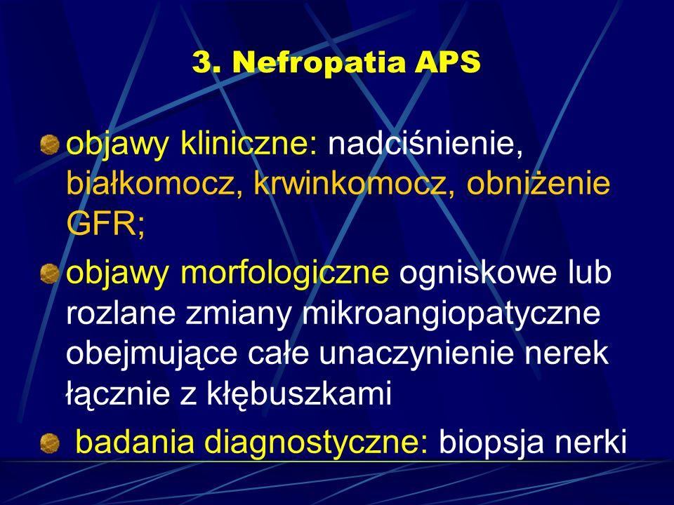 3. Nefropatia APS objawy kliniczne: nadciśnienie, białkomocz, krwinkomocz, obniżenie GFR; objawy morfologiczne ogniskowe lub rozlane zmiany mikroangio