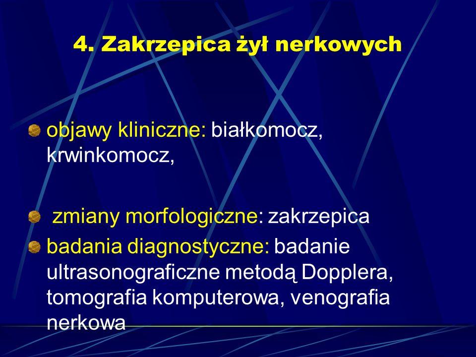 4. Zakrzepica żył nerkowych objawy kliniczne: białkomocz, krwinkomocz, zmiany morfologiczne: zakrzepica badania diagnostyczne: badanie ultrasonografic