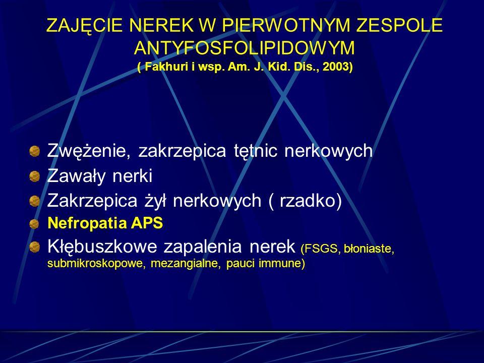 ZAJĘCIE NEREK W PIERWOTNYM ZESPOLE ANTYFOSFOLIPIDOWYM ( Fakhuri i wsp. Am. J. Kid. Dis., 2003) Zwężenie, zakrzepica tętnic nerkowych Zawały nerki Zakr