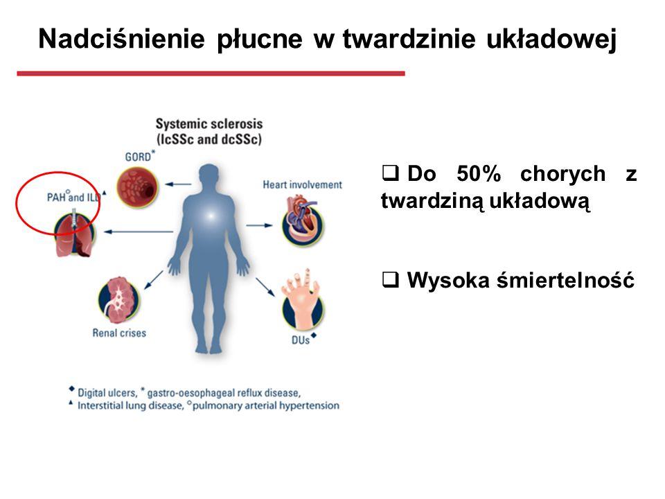 Nadciśnienie płucne w twardzinie układowej Do 50% chorych z twardziną układową Wysoka śmiertelność