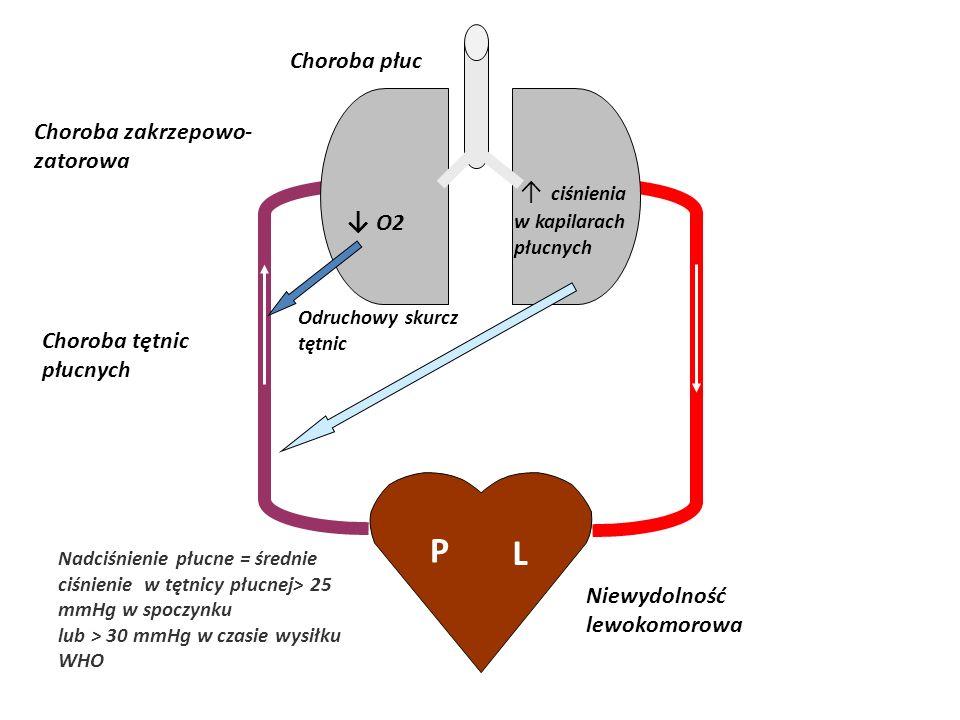 Choroba tętnic płucnych Nadciśnienie płucne = średnie ciśnienie w tętnicy płucnej> 25 mmHg w spoczynku lub > 30 mmHg w czasie wysiłku WHO Choroba płuc