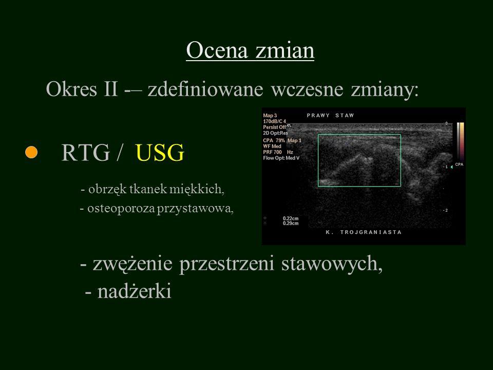 Ocena zmian RTG / - osteoporoza przystawowa, - zwężenie przestrzeni stawowych, - obrzęk tkanek miękkich, - nadżerki Okres II -– zdefiniowane wczesne z