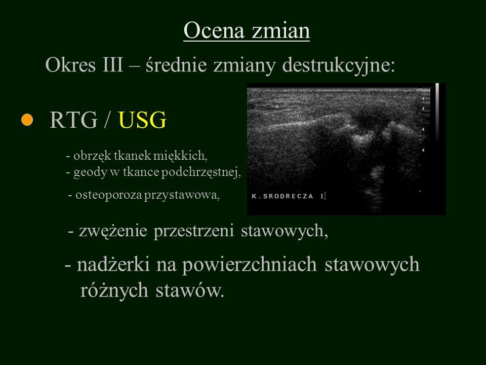 Ocena zmian RTG / - osteoporoza przystawowa, - zwężenie przestrzeni stawowych, - obrzęk tkanek miękkich, - geody w tkance podchrzęstnej, - nadżerki na