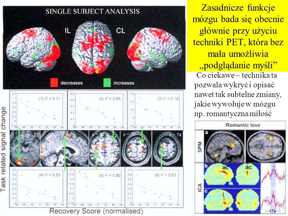 Dokładniejsze badania pozwoliły zidentyfikować i zlokalizować podstawowe funkcje mózgu