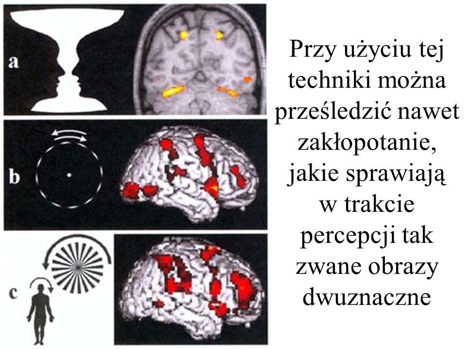 podglądanie myśli Co ciekawe – technika ta pozwala wykryć i opisać nawet tak subtelne zmiany, jakie wywołuje w mózgu np. romantyczna miłość Zasadnicze