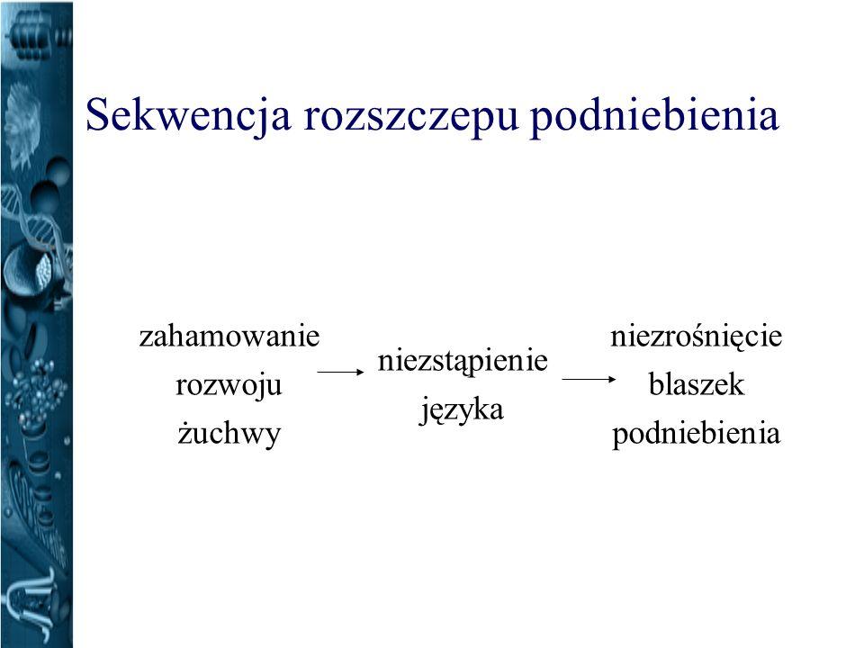 Sekwencja rozszczepu podniebienia niezrośnięcie blaszek podniebienia niezstąpienie języka zahamowanie rozwoju żuchwy