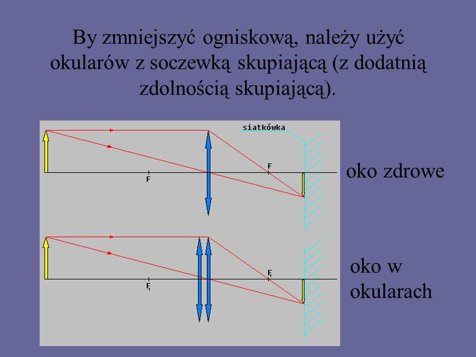 Jeżeli odsuwasz tekst, aby widzieć wyraźniej, jesteś dalekowidzem.