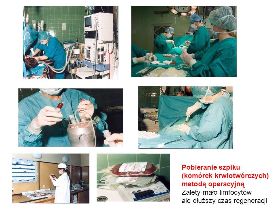 Pobieranie szpiku (komórek krwiotwórczych) metodą operacyjną Zalety-mało limfocytów ale dłuższy czas regeneracji