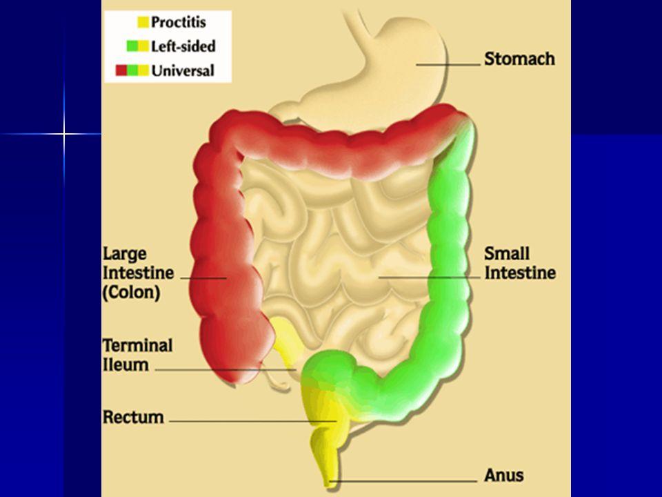 Co wpływa na pH treści jelitowej .