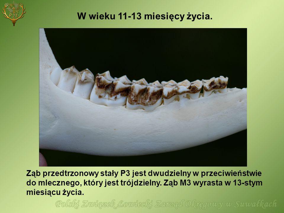 Ząb przedtrzonowy stały P3 jest dwudzielny w przeciwieństwie do mlecznego, który jest trójdzielny. Ząb M3 wyrasta w 13-stym miesiącu życia. W wieku 11