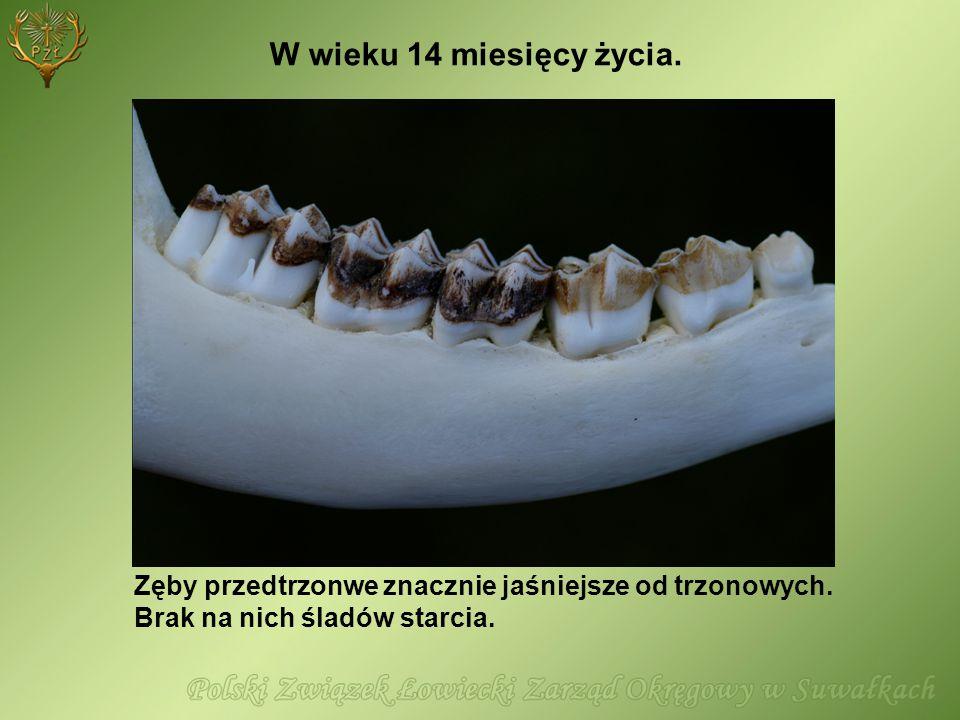 Zęby przedtrzonwe znacznie jaśniejsze od trzonowych. Brak na nich śladów starcia. W wieku 14 miesięcy życia.
