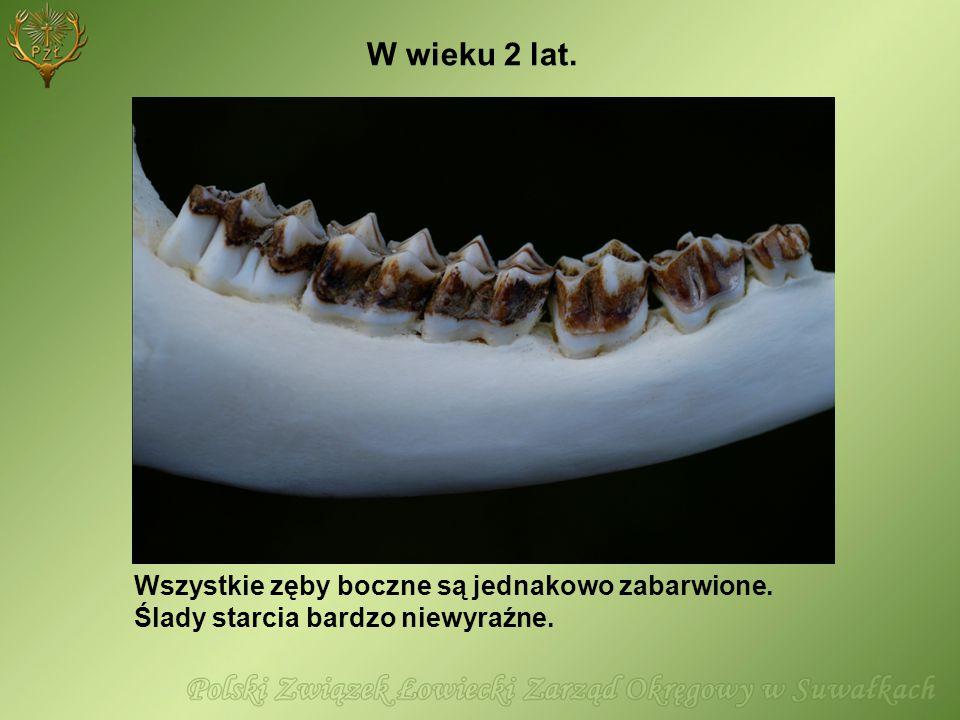 Wszystkie zęby boczne są jednakowo zabarwione. Ślady starcia bardzo niewyraźne. W wieku 2 lat.