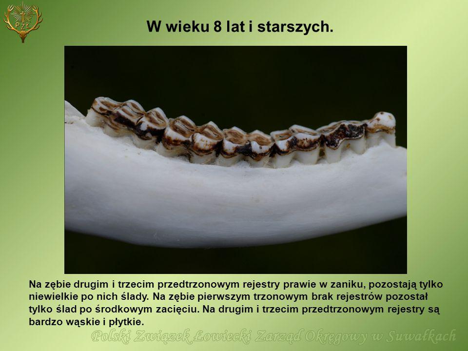 W wieku 8 lat i starszych. Na zębie drugim i trzecim przedtrzonowym rejestry prawie w zaniku, pozostają tylko niewielkie po nich ślady. Na zębie pierw