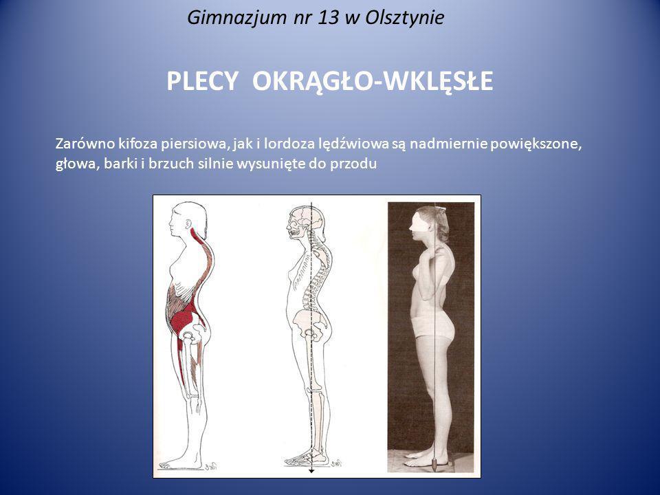 Gimnazjum nr 13 w Olsztynie PLECY OKRĄGŁO-WKLĘSŁE Zarówno kifoza piersiowa, jak i lordoza lędźwiowa są nadmiernie powiększone, głowa, barki i brzuch s