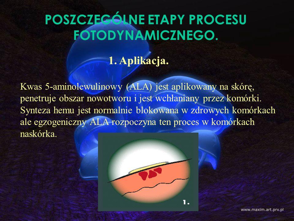 POSZCZEGÓLNE ETAPY PROCESU FOTODYNAMICZNEGO. Kwas 5-aminolewulinowy (ALA) jest aplikowany na skórę, penetruje obszar nowotworu i jest wchłaniany przez