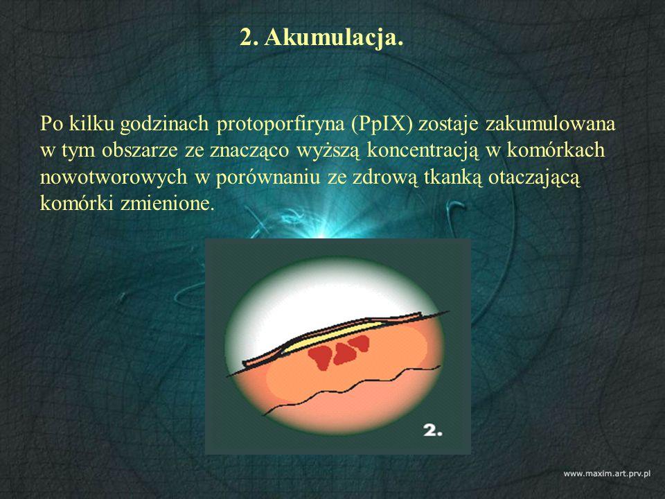 2. Akumulacja. Po kilku godzinach protoporfiryna (PpIX) zostaje zakumulowana w tym obszarze ze znacząco wyższą koncentracją w komórkach nowotworowych
