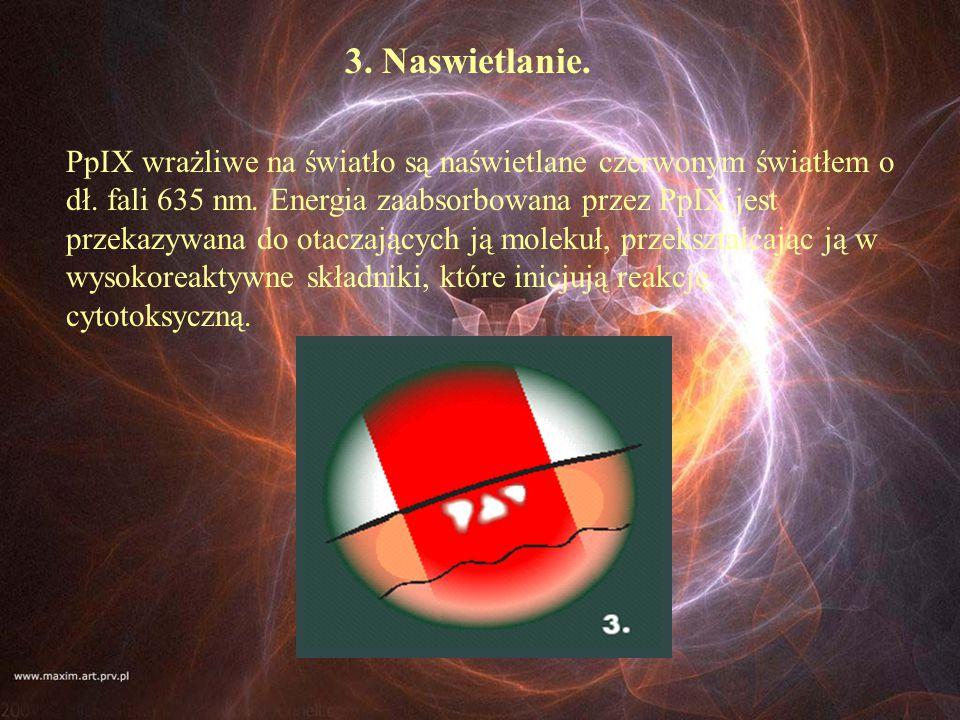 3. Naswietlanie. PpIX wrażliwe na światło są naświetlane czerwonym światłem o dł. fali 635 nm. Energia zaabsorbowana przez PpIX jest przekazywana do o