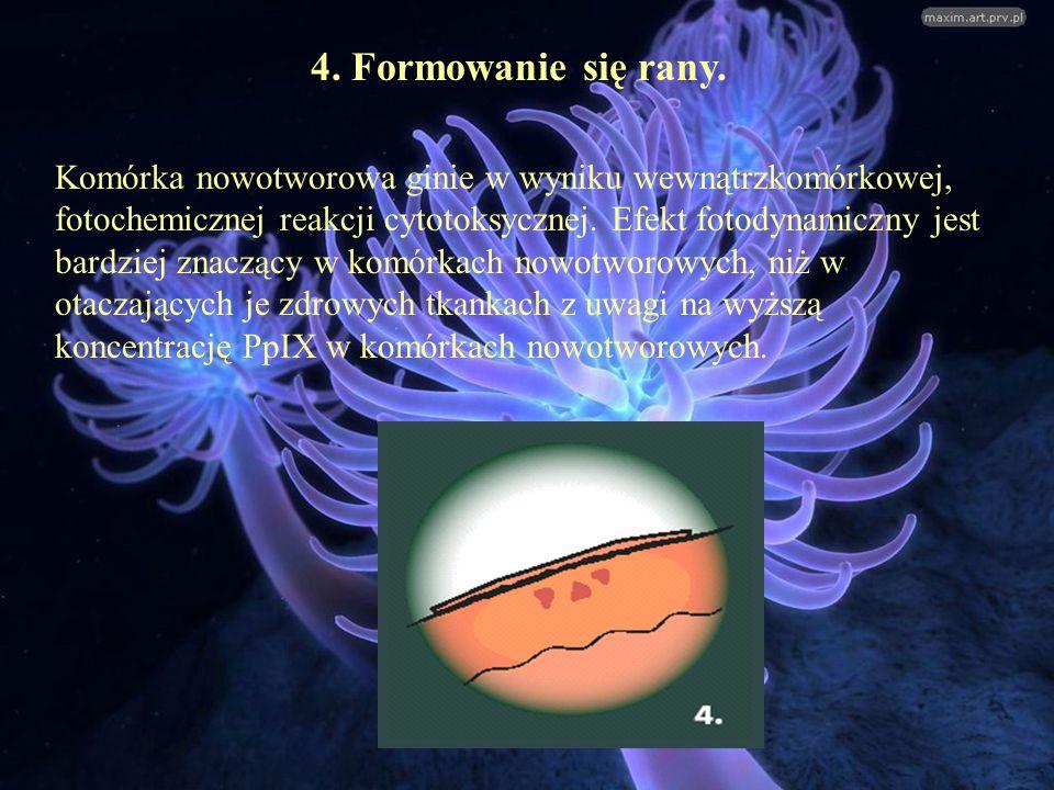 4. Formowanie się rany. Komórka nowotworowa ginie w wyniku wewnątrzkomórkowej, fotochemicznej reakcji cytotoksycznej. Efekt fotodynamiczny jest bardzi