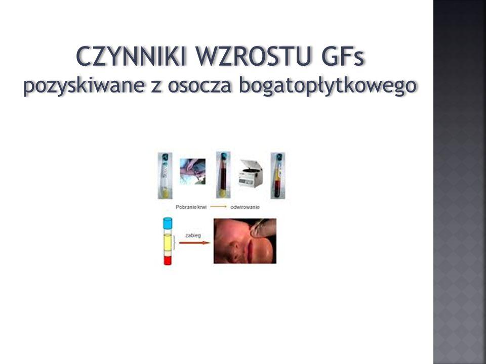 CZYNNIKI WZROSTU GFs pozyskiwane z osocza bogatopłytkowego CZYNNIKI WZROSTU GFs pozyskiwane z osocza bogatopłytkowego