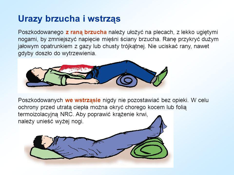 Urazy brzucha i wstrząs Poszkodowanego z raną brzucha należy ułożyć na plecach, z lekko ugiętymi nogami, by zmniejszyć napięcie mięśni ściany brzucha.