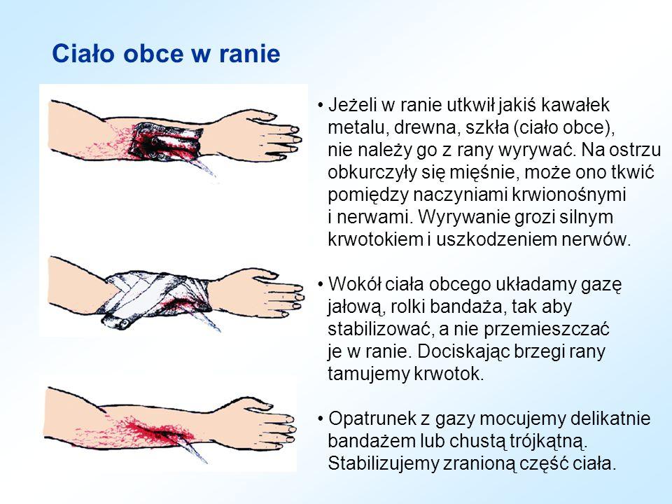 Ciało obce w ranie Jeżeli w ranie utkwił jakiś kawałek metalu, drewna, szkła (ciało obce), nie należy go z rany wyrywać. Na ostrzu obkurczyły się mięś