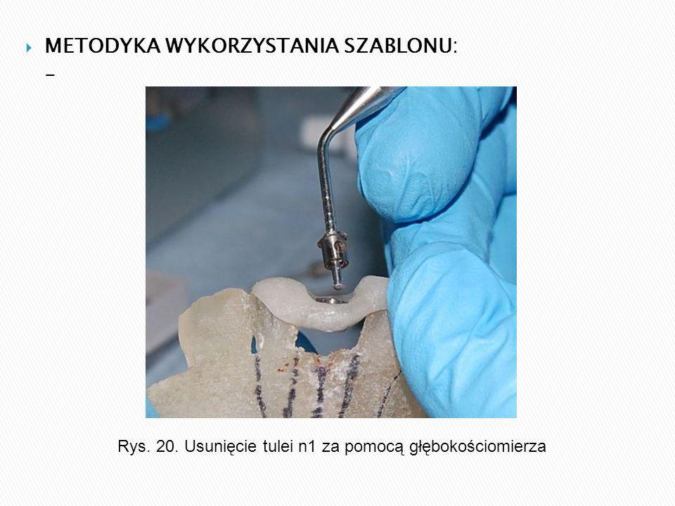  METODYKA WYKORZYSTANIA SZABLONU: - Rys. 20. Usunięcie tulei n1 za pomocą głębokościomierza