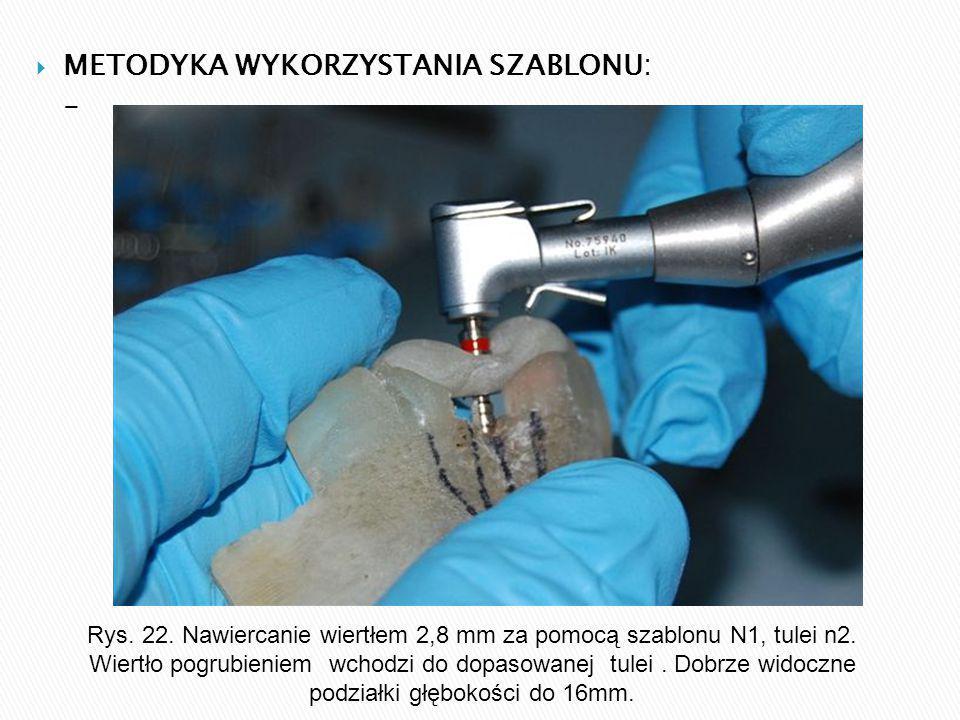  METODYKA WYKORZYSTANIA SZABLONU: - Rys. 22.
