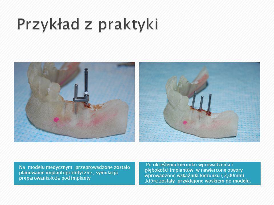 Na modelu medycznym przeprowadzone zostało planowanie implantoprotetyczne, symulacja preparowania łoża pod implanty Po określeniu kierunku wprowadzenia i głębokości implantów w nawiercone otwory wprowadzone wskaźniki kierunku ( 2,00mm),które zostały przyklejone woskiem do modelu.