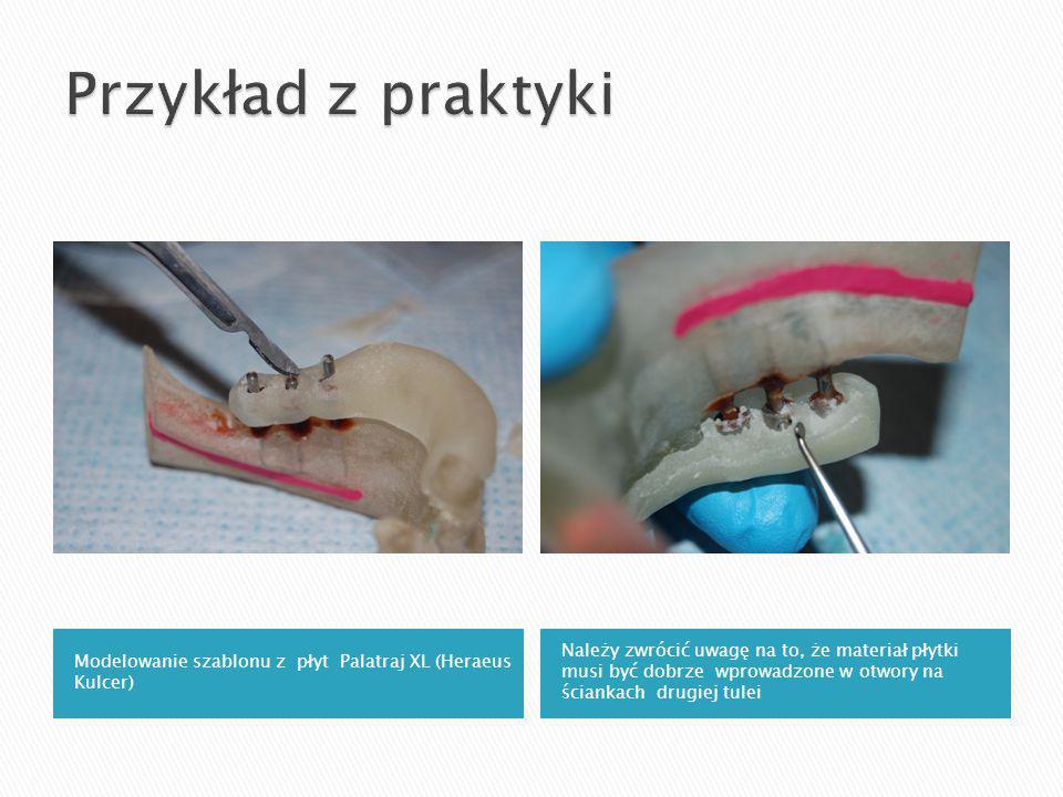 Modelowanie szablonu z płyt Palatraj XL (Heraeus Kulcer) Należy zwrócić uwagę na to, że materiał płytki musi być dobrze wprowadzone w otwory na ściankach drugiej tulei