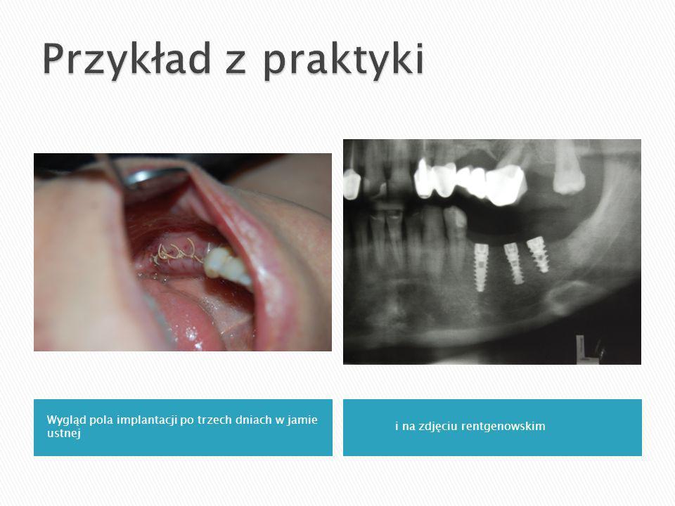 Wygląd pola implantacji po trzech dniach w jamie ustnej i na zdjęciu rentgenowskim