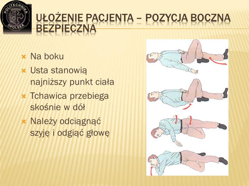  Na boku  Usta stanowią najniższy punkt ciała  Tchawica przebiega skośnie w dół  Należy odciągnąć szyję i odgiąć głowę
