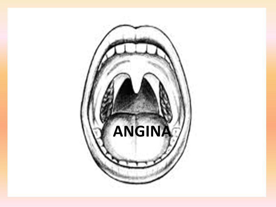 Angina Angina, czyli ostre zapalenie migdałków podniebiennych i błony śluzowej gardła jest wywoływane przez bakterie rzadziej wirusy, a sporadycznie - grzyby.