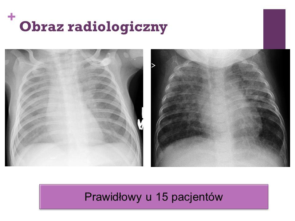 + Obraz radiologiczny Prawidłowy u 15 pacjentów