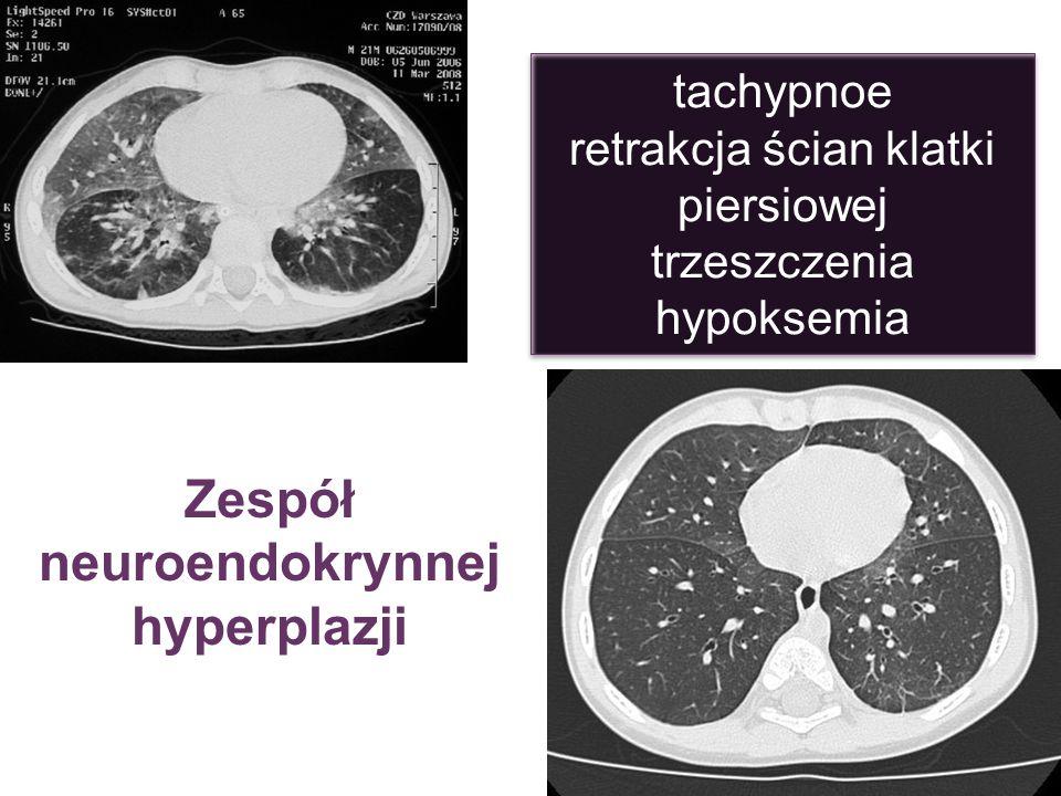 Zespół neuroendokrynnej hyperplazji tachypnoe retrakcja ścian klatki piersiowej trzeszczenia hypoksemia tachypnoe retrakcja ścian klatki piersiowej tr