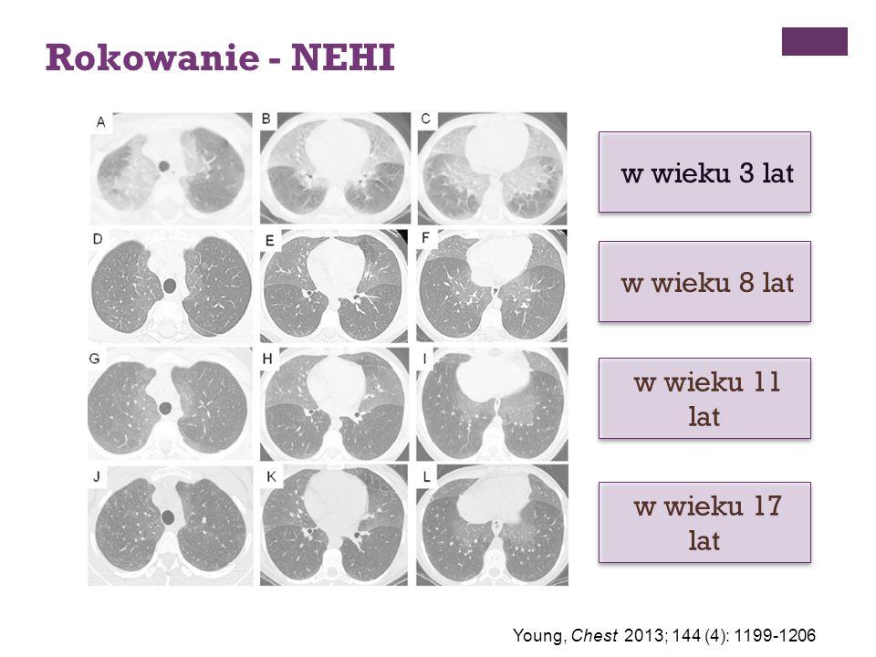 Rokowanie - NEHI w wieku 3 lat w wieku 8 lat w wieku 11 lat w wieku 17 lat Young, Chest 2013; 144 (4): 1199-1206
