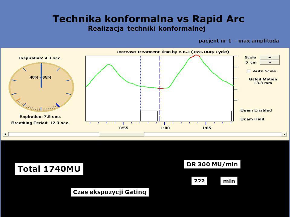 Technika konformalna vs Rapid Arc Realizacja techniki konformalnej pacjent nr 1 – max amplituda Total 1740MU DR 300 MU/min Czas ekspozycji Gating min???